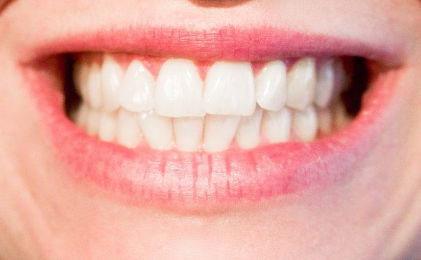 Obecna technologia stosowana w salonach stomatologii estetycznej być może spowodować, że odbierzemy ładny uśmieszek.